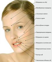 Увеличение губ,  контурная пластика носогубных складок